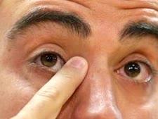 צבע העיניים קובע [צילום: מנו פרננדז/AP]
