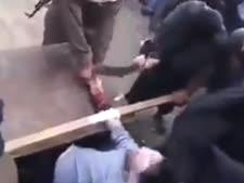 כריתת יד. דין השריעה [צילום: מן הטלוויזיה]