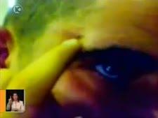 טארק אבו לבן מציג חבלה ליד עינו [צילום: ערוץ 10]