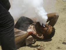 הוא לא מעשן. הפלשתיני הפצוע [צילום: עאדל חנא/AP]