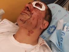 הנהג הפצוע מאושפז בבית חולים