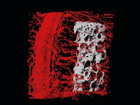 סריקה תלת-ממדית הממחישה את חדירת כלי הדם אל תוך העצם המושתלת בתוך מתלה הרקמה שנוצר [צילום: דוברות הטכניון]