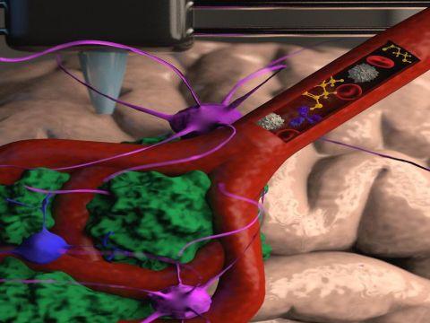 כלי דם מודפס במדפסת תלת ממד בתוך ביוראקטור המכיל רקמה המדמה את המוח האנושי יחד עם תאי סרטן ממטופל. בתוך כלי הדם ניתן להזרים תרופות שונות, תאים וטיפולים אימונוטרפיים [צילום אילוסטרציה: ויקטוריה היוז]